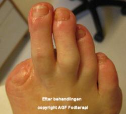Negl efter - AGF Klinik for fodterapi